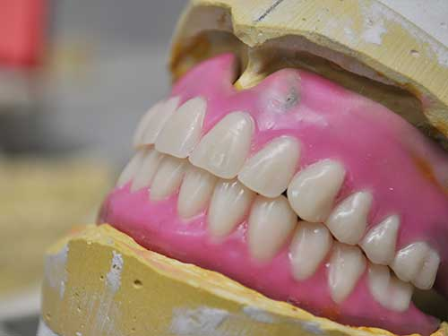Custom made dentures up close