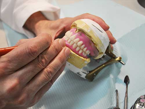 Making custom dentures