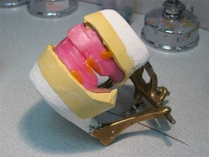 Custom making your dentures